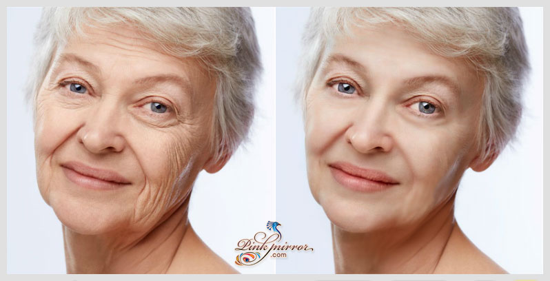 Natural Ways To Remove Scars From Mature Skin