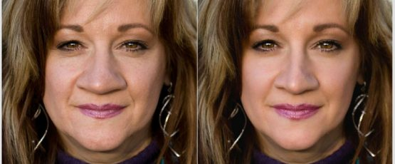 Nose Shaping: Get it Done with PinkMirror to Sculpt Your Ideal Look