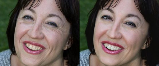 Easily And Effortlessly Remove Skin Spots For Picture Perfect Skin