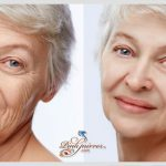 forehead wrinkles remover with online makeover