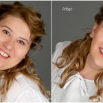 face slimming and face thinning