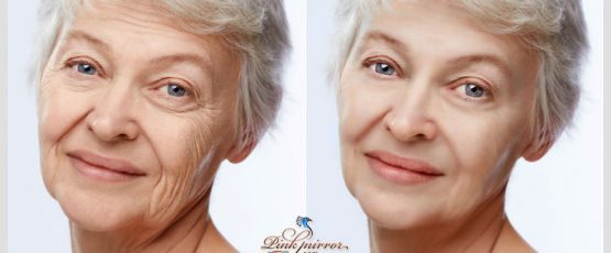 Wrinkle Reduction Can Take 10 Years Off In 10 Minutes!