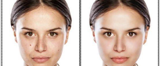 Remove Skin Spots, Blemishes And Acne Marks From Your Photos.