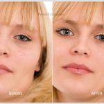 scar remove photo retouch