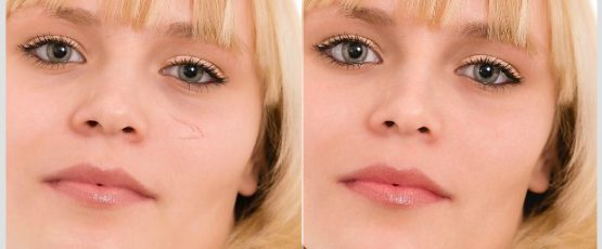 Virtual Makeover Portrait Retouch For Slim Face: Get That Younger, Weight Reduction Online Makeover Now