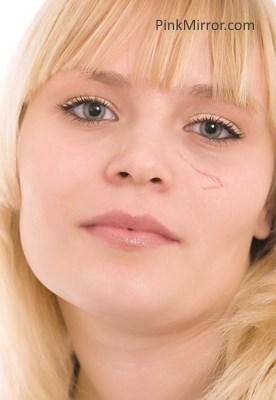 scar on face