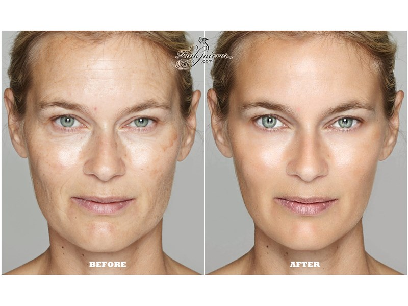 wrinkle fine lines removal photo editor