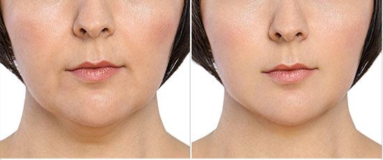 feminine chin line jaw shape