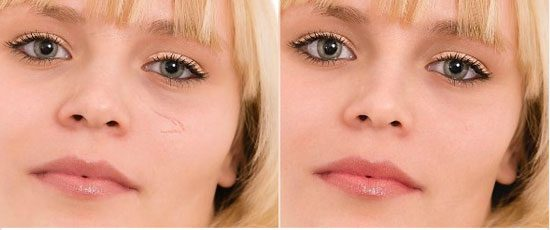 Look Younger And Hide Flaws Instantly With Online Automatic Photo Retouching.