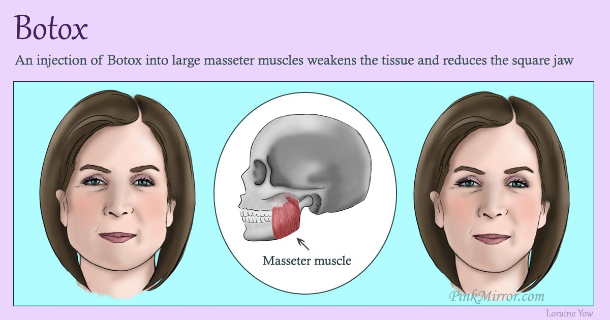Injecting Botox weakens the muscles which lead to reduction of the tissue in the area making the facial feature slimmer