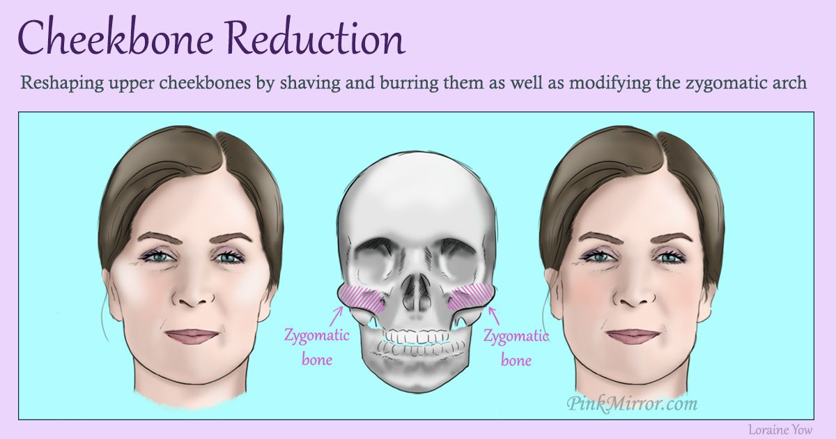 reshaping the upper cheekbones by shaving and burring them as well as modifying the zygomatic arch