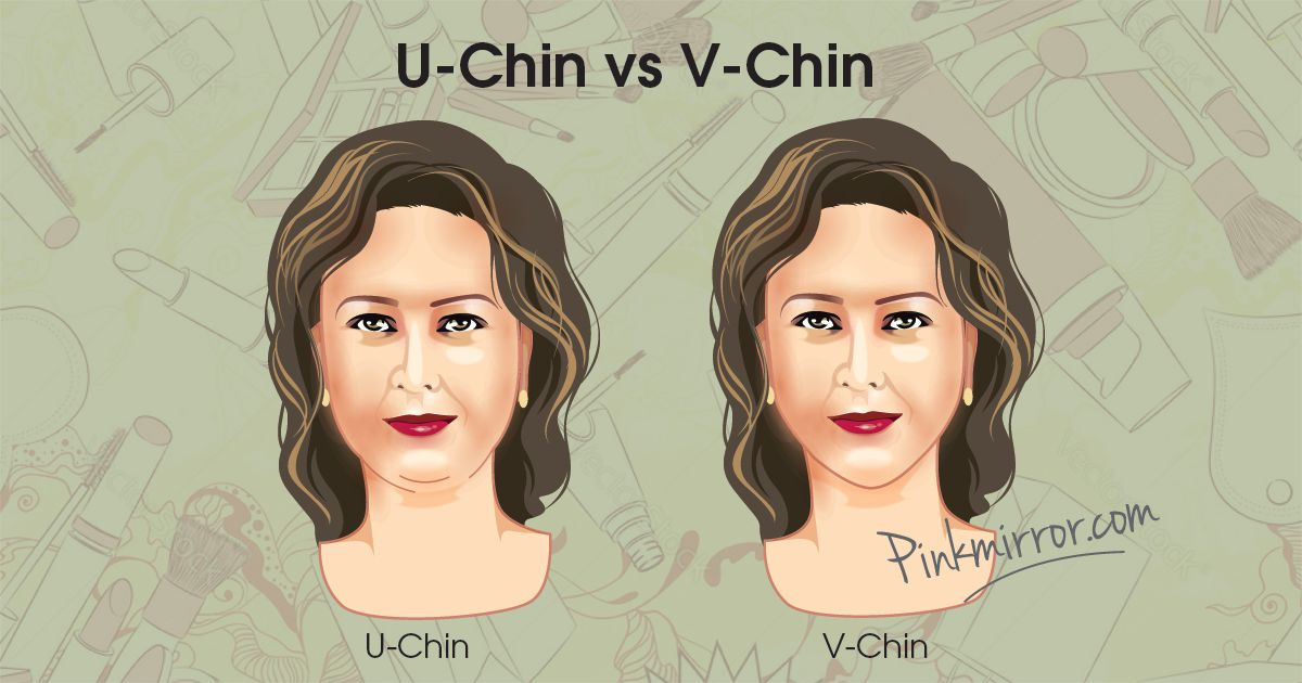 U chin vs V chin