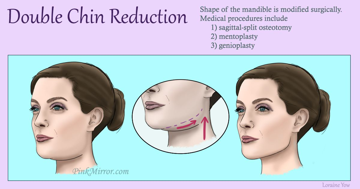 shape of the mandible is modified surgically by removing parts of bone and flesh near the chin