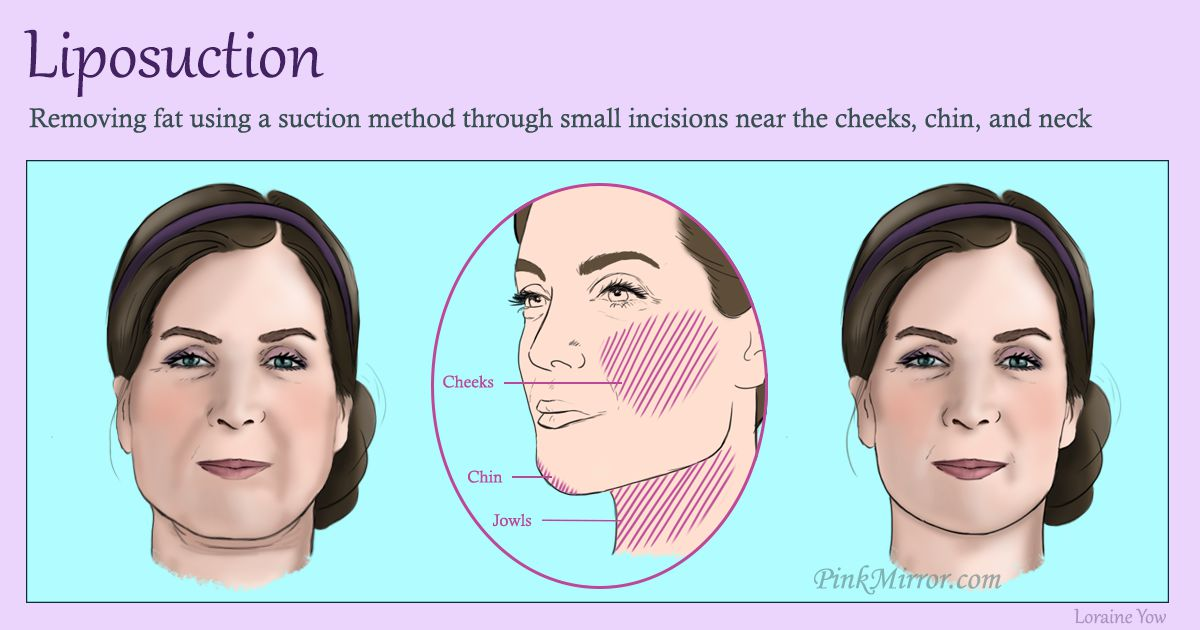 removing facial fat using a suction method through small incisions made near the areas where changes need to be made
