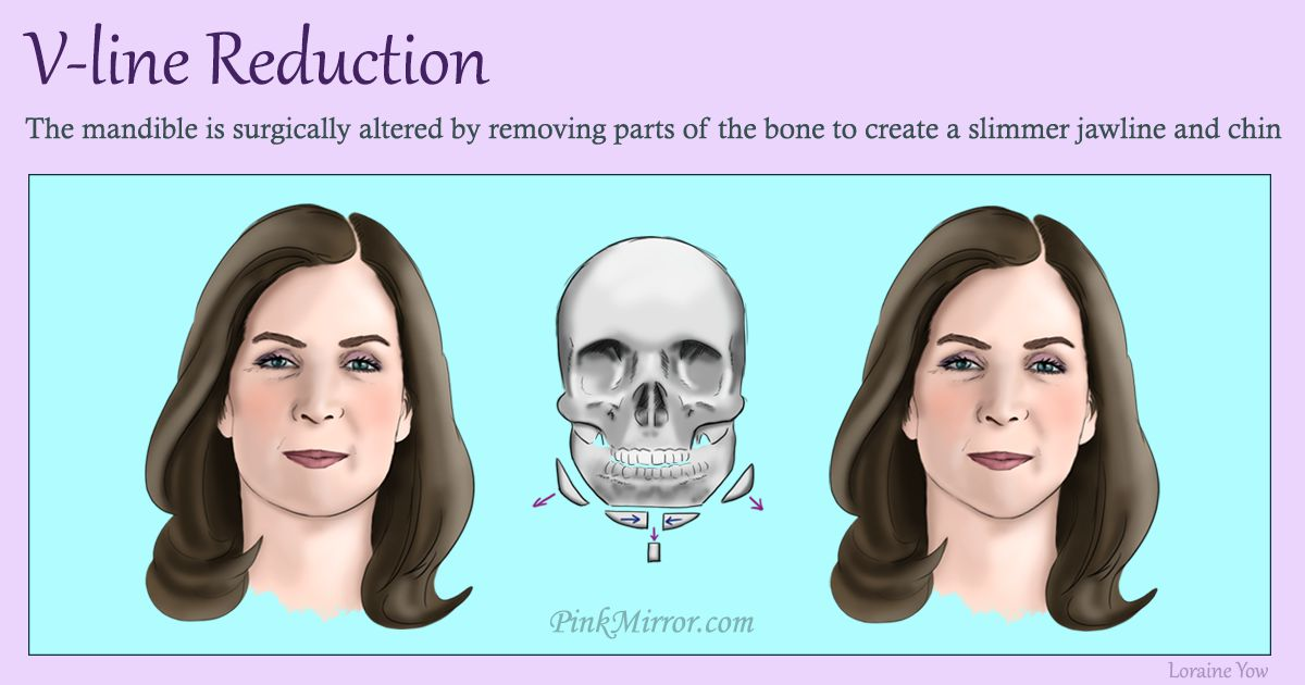 reforming the shape of the lower face to create a vertically narrower facial feature