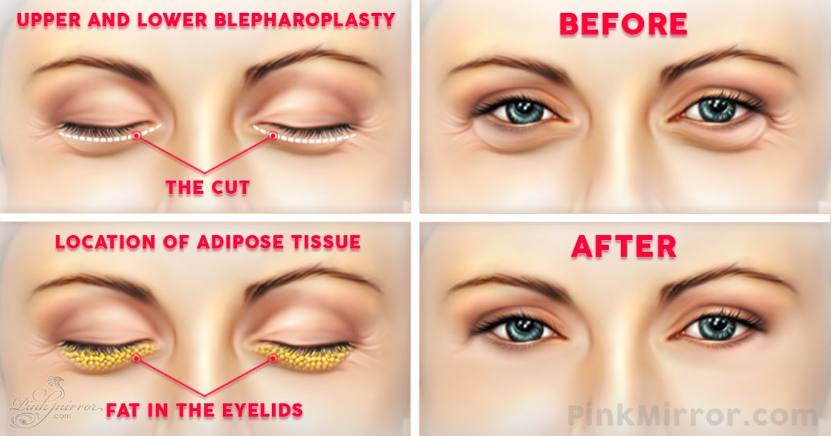 Surgery under eye bags Blepharoplasty eyelid lift