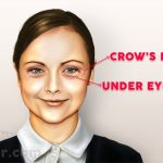under eye bags and crows feet